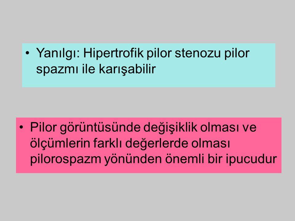 Yanılgı: Hipertrofik pilor stenozu pilor spazmı ile karışabilir Pilor görüntüsünde değişiklik olması ve ölçümlerin farklı değerlerde olması pilorospaz