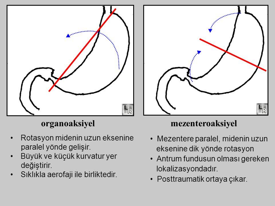 Rotasyon midenin uzun eksenine paralel yönde gelişir. Büyük ve küçük kurvatur yer değiştirir. Sıklıkla aerofaji ile birliktedir. organoaksiyelmezenter