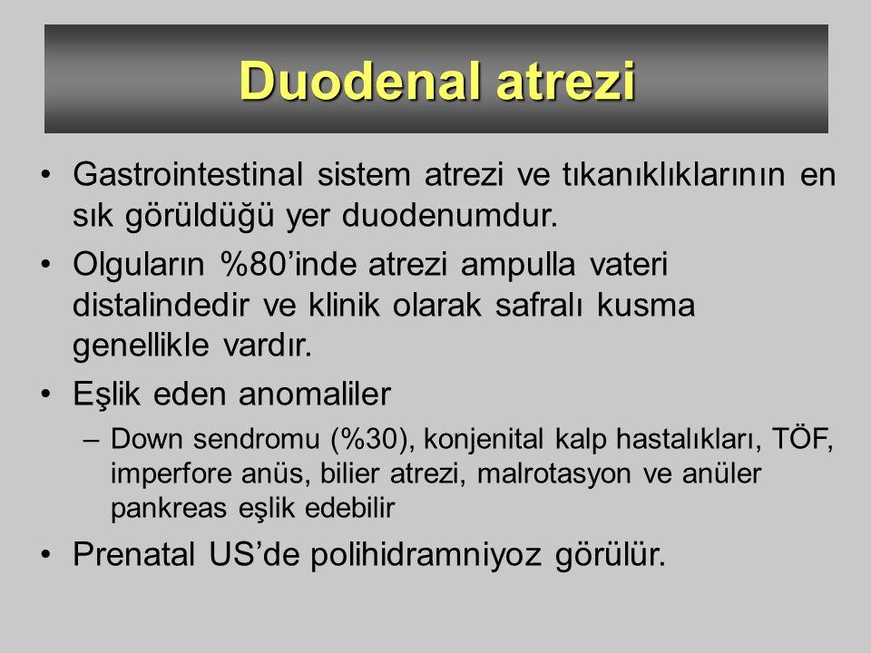 Duodenal atrezi Gastrointestinal sistem atrezi ve tıkanıklıklarının en sık görüldüğü yer duodenumdur. Olguların %80'inde atrezi ampulla vateri distali