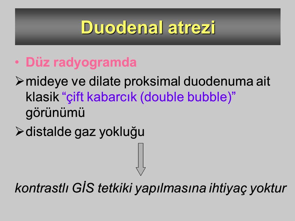 """Duodenal atrezi Düz radyogramda  mideye ve dilate proksimal duodenuma ait klasik """"çift kabarcık (double bubble)"""" görünümü  distalde gaz yokluğu kont"""