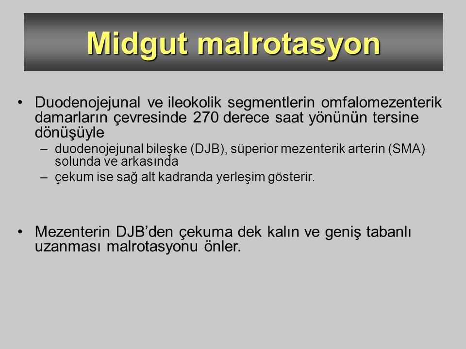 Midgut malrotasyon Duodenojejunal ve ileokolik segmentlerin omfalomezenterik damarların çevresinde 270 derece saat yönünün tersine dönüşüyle –duodenoj
