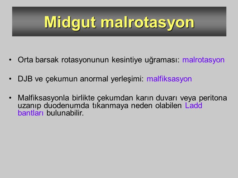 Midgut malrotasyon Orta barsak rotasyonunun kesintiye uğraması: malrotasyon DJB ve çekumun anormal yerleşimi: malfiksasyon Malfiksasyonla birlikte çek