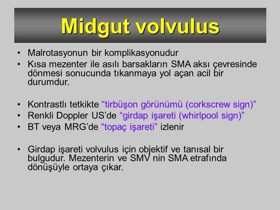 Midgut volvulus Malrotasyonun bir komplikasyonudur Kısa mezenter ile asılı barsakların SMA aksı çevresinde dönmesi sonucunda tıkanmaya yol açan acil b