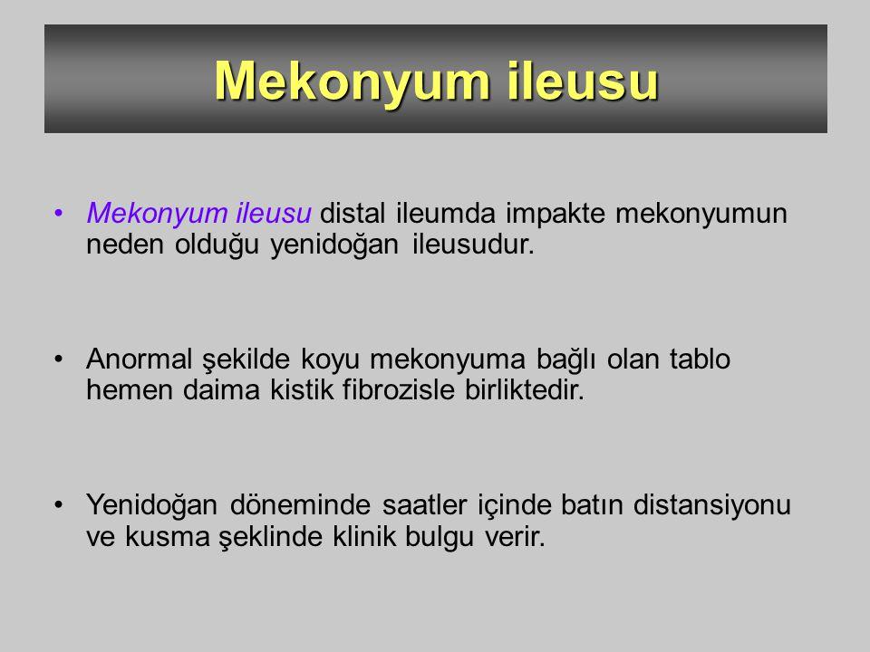 Mekonyum ileusu Mekonyum ileusu distal ileumda impakte mekonyumun neden olduğu yenidoğan ileusudur. Anormal şekilde koyu mekonyuma bağlı olan tablo he