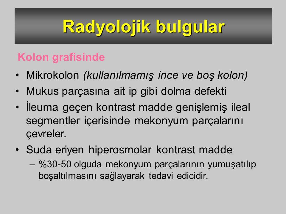 Radyolojik bulgular Mikrokolon (kullanılmamış ince ve boş kolon) Mukus parçasına ait ip gibi dolma defekti İleuma geçen kontrast madde genişlemiş ilea