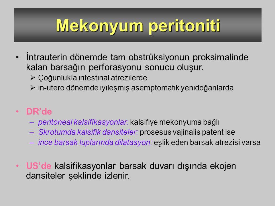 Mekonyum peritoniti İntrauterin dönemde tam obstrüksiyonun proksimalinde kalan barsağın perforasyonu sonucu oluşur.  Çoğunlukla intestinal atrezilerd