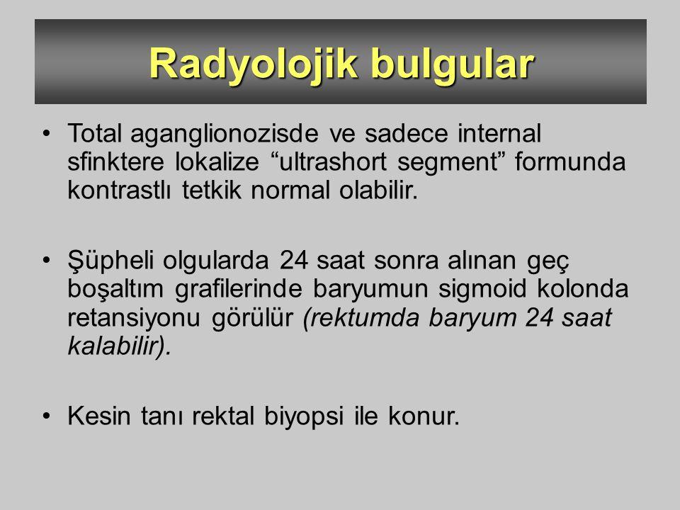 """Radyolojik bulgular Total aganglionozisde ve sadece internal sfinktere lokalize """"ultrashort segment"""" formunda kontrastlı tetkik normal olabilir. Şüphe"""
