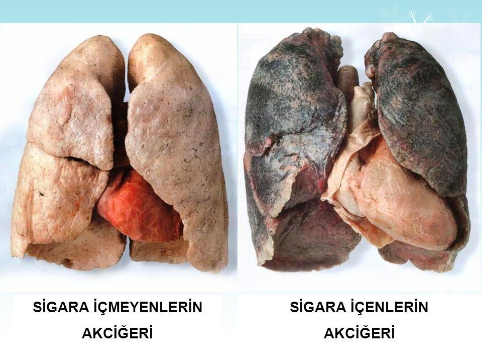 Sigara, nefes borularını ve akciğerleri çalışamaz hale gelecek şekilde hasara uğratır Yaşamınızı nefes darlığı içinde, oksijen tüpüne bağımlı ve yatağ