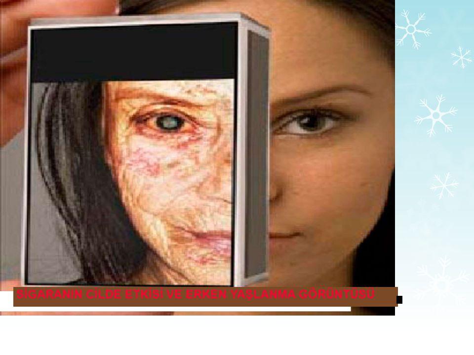 Sigara kadınlarda kemik erimesi ve deri kırışıklarını arttırır. Sigara içen kadınlarda menapoz sonrası dönemde kalça kırığı riski fazladır.