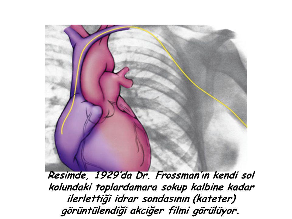 Resimde, 1929'da Dr. Frossman'ın kendi sol kolundaki toplardamara sokup kalbine kadar ilerlettiği idrar sondasının (kateter) görüntülendiği akciğer fi