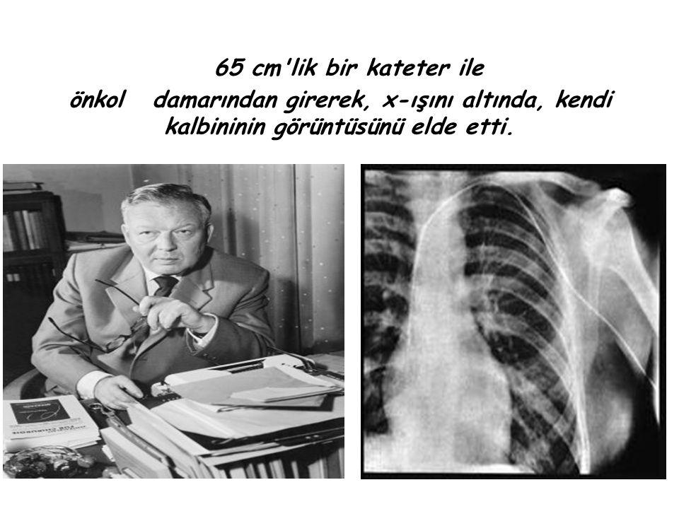 65 cm'lik bir kateter ile önkol damarından girerek, x-ışını altında, kendi kalbininin görüntüsünü elde etti.