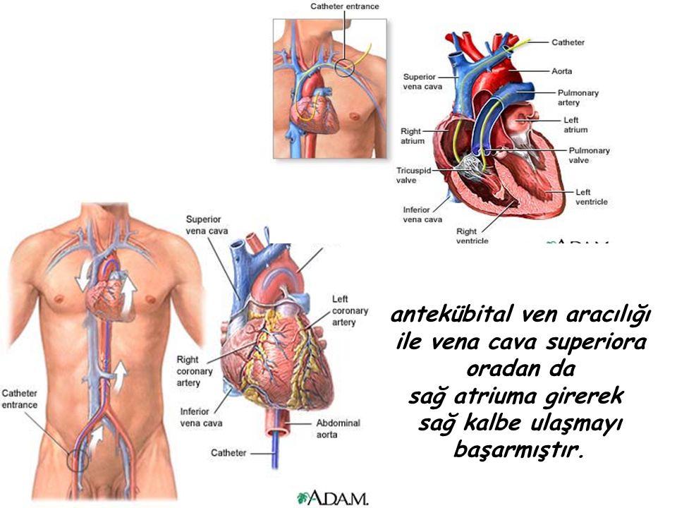 1929 yılında birinci sene cerrahi asistanı olarak bölüm başkanı olan Schneider e kalp kateterizasyonuyla ilgili bir deney yapmayı önermiştir.