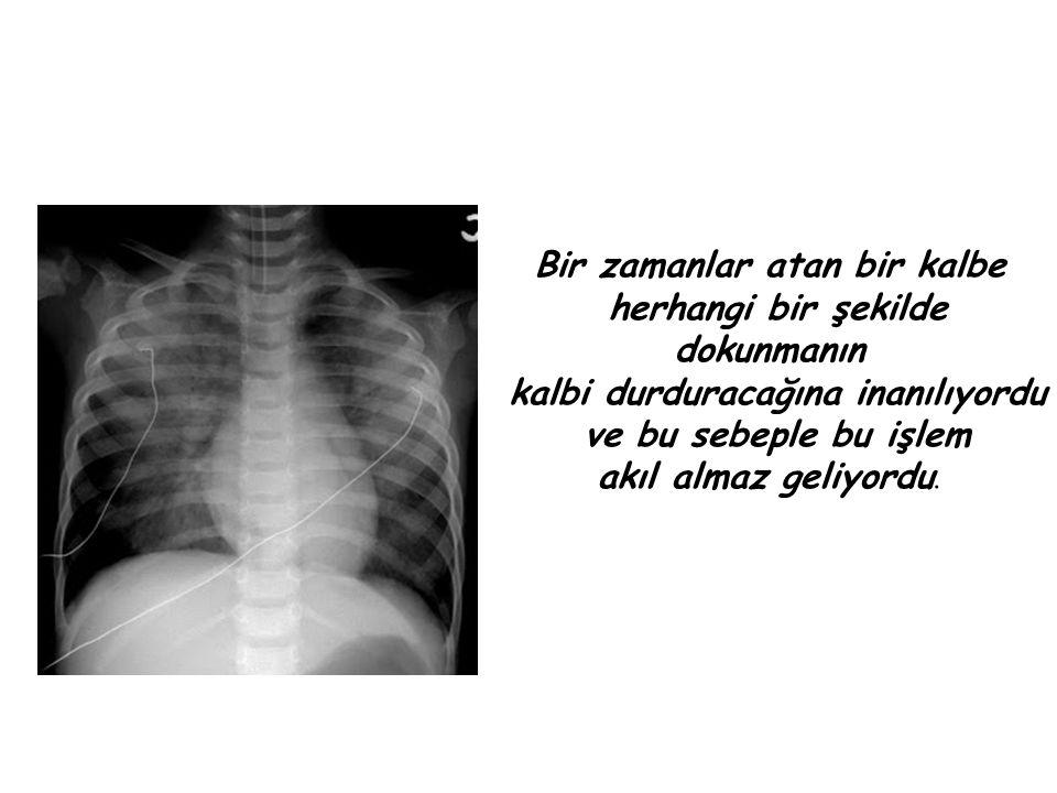 Forsmann, Peter Romeis in yardımıyla kendi antekübital bölgesinden bir iğne aracılığıyla 35 cm lik kateteri damar içine yerleştirmiştir.
