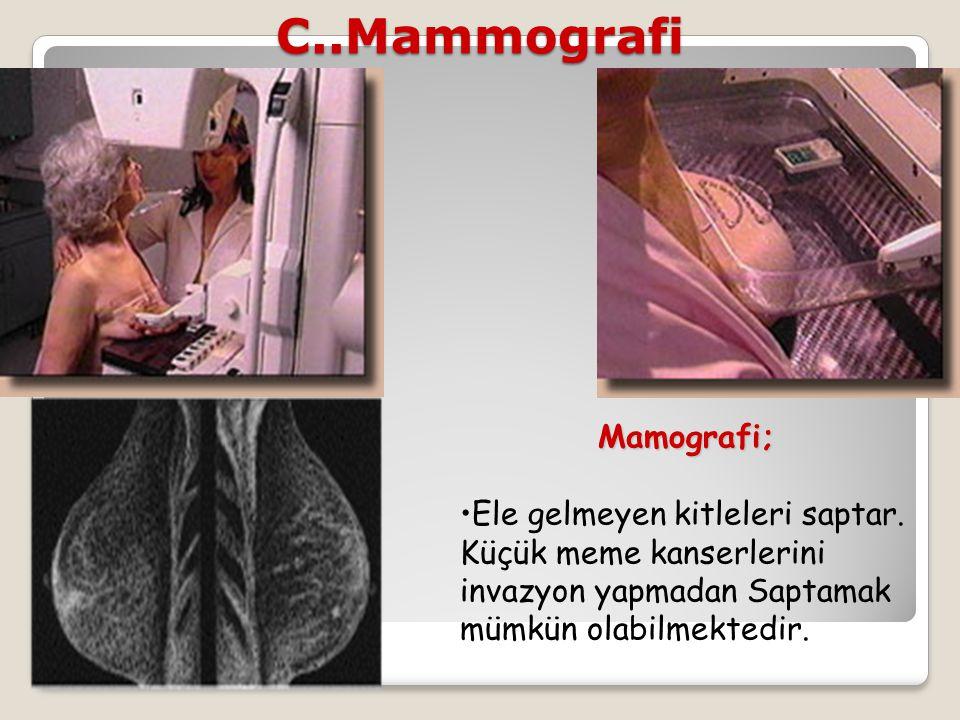 C..MammografiMamografi; Ele gelmeyen kitleleri saptar. Küçük meme kanserlerini invazyon yapmadan Saptamak mümkün olabilmektedir.