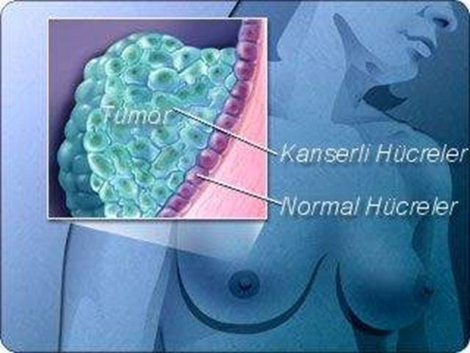  Meme kanserinde sıçrama (metastatik yayılımın) % 20 'si lenf kanalları yolu ile gerçekleşir.