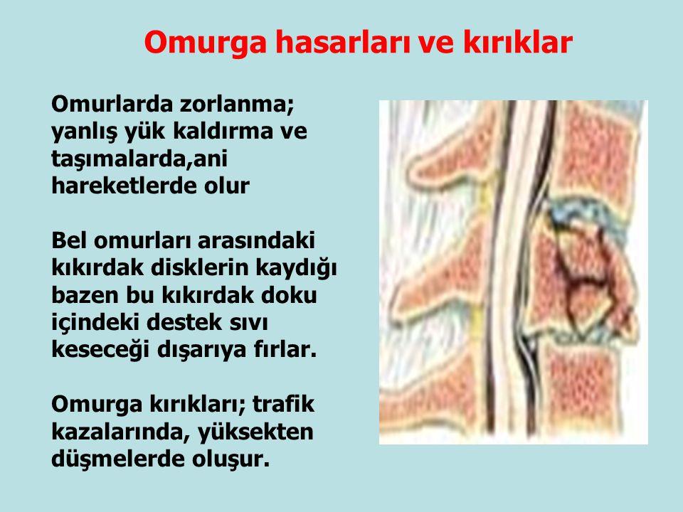 Omurga hasarları ve kırıklar Omurlarda zorlanma; yanlış yük kaldırma ve taşımalarda,ani hareketlerde olur Bel omurları arasındaki kıkırdak disklerin k