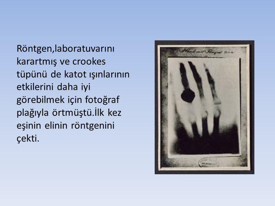 Röntgen,laboratuvarını karartmış ve crookes tüpünü de katot ışınlarının etkilerini daha iyi görebilmek için fotoğraf plağıyla örtmüştü.İlk kez eşinin