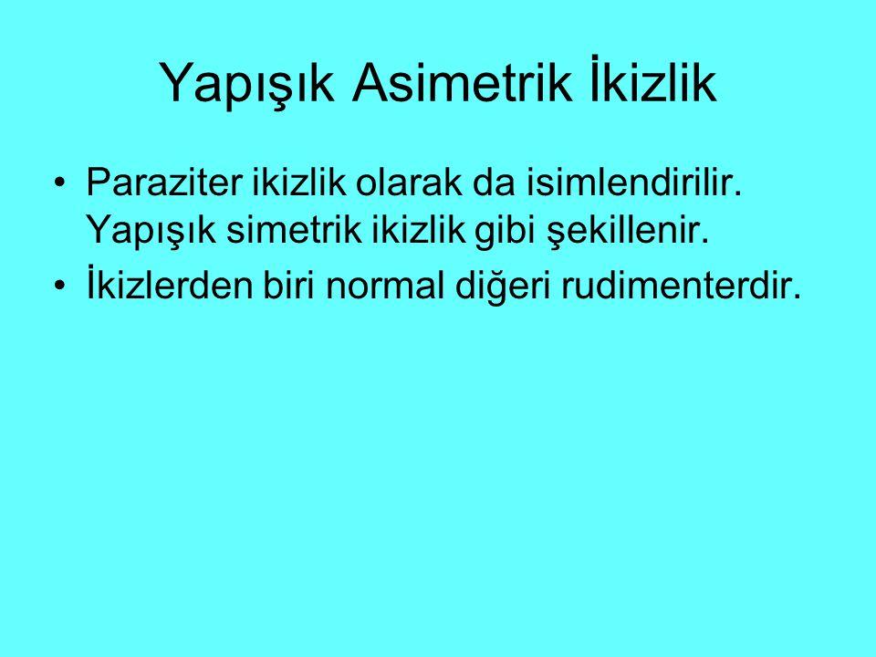 Yapışık Asimetrik İkizlik Paraziter ikizlik olarak da isimlendirilir.