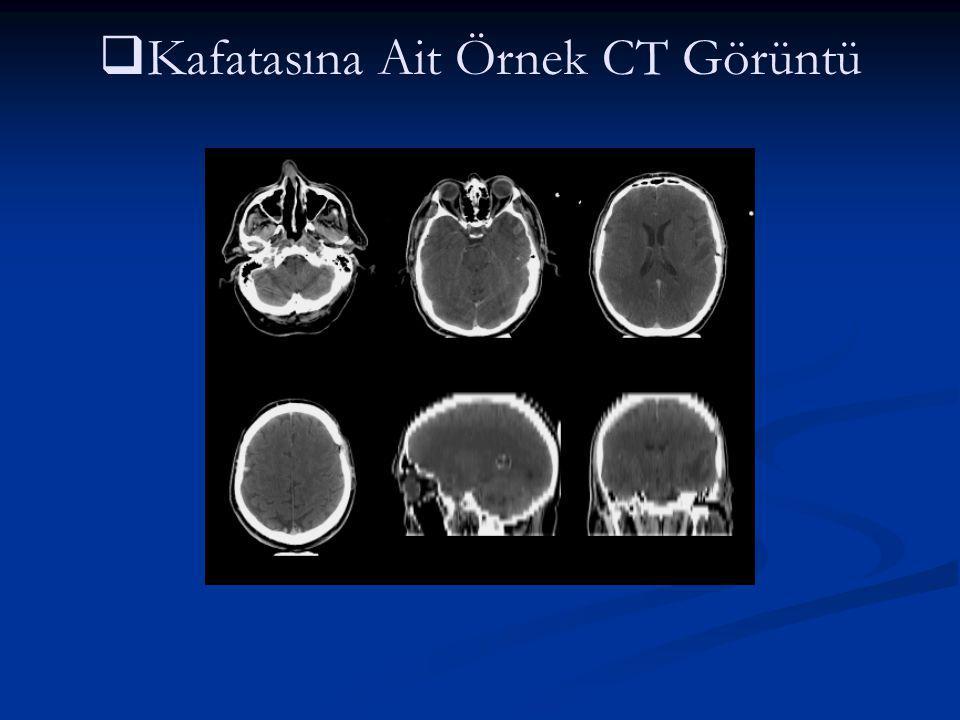   Kafatasına Ait Örnek CT Görüntü