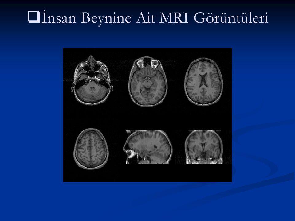   İnsan Beynine Ait MRI Görüntüleri