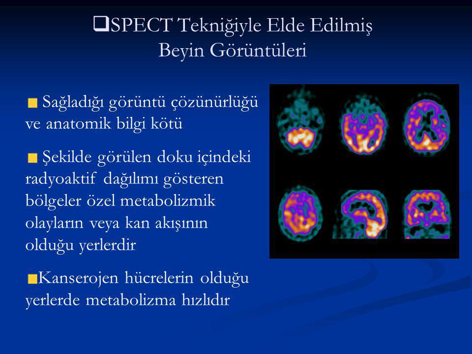   SPECT Tekniğiyle Elde Edilmiş Beyin Görüntüleri Sağladığı görüntü çözünürlüğü ve anatomik bilgi kötü Şekilde görülen doku içindeki radyoaktif dağı