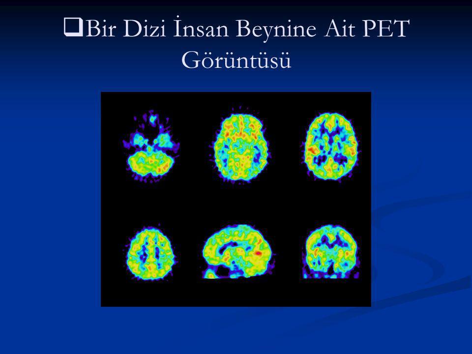   Bir Dizi İnsan Beynine Ait PET Görüntüsü