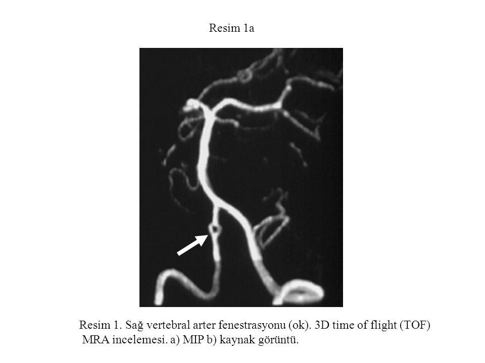 Resim 1a Resim 1. Sağ vertebral arter fenestrasyonu (ok). 3D time of flight (TOF) MRA incelemesi. a) MIP b) kaynak görüntü.