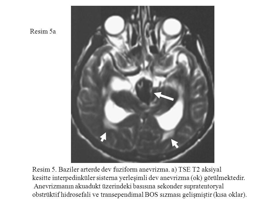 Resim 5a Resim 5. Baziler arterde dev fuziform anevrizma. a) TSE T2 aksiyal kesitte interpedinküler sisterna yerleşimli dev anevrizma (ok) görülmekted