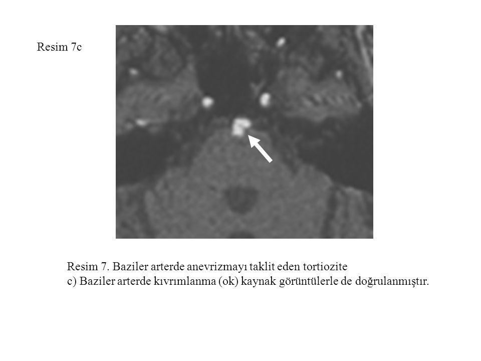 Resim 7c Resim 7. Baziler arterde anevrizmayı taklit eden tortiozite c) Baziler arterde kıvrımlanma (ok) kaynak görüntülerle de doğrulanmıştır.