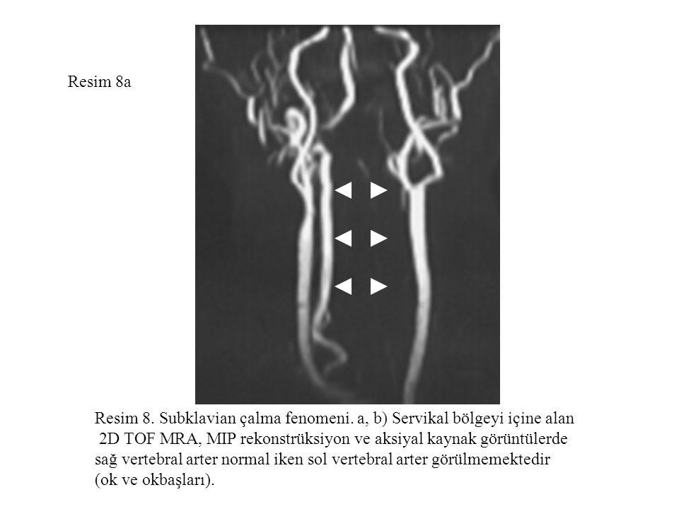 Resim 8a Resim 8. Subklavian çalma fenomeni. a, b) Servikal bölgeyi içine alan 2D TOF MRA, MIP rekonstrüksiyon ve aksiyal kaynak görüntülerde sağ vert
