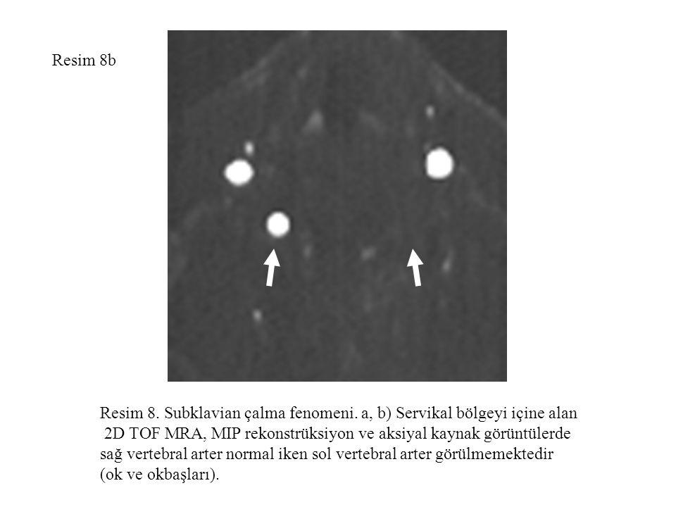 Resim 8b Resim 8. Subklavian çalma fenomeni. a, b) Servikal bölgeyi içine alan 2D TOF MRA, MIP rekonstrüksiyon ve aksiyal kaynak görüntülerde sağ vert