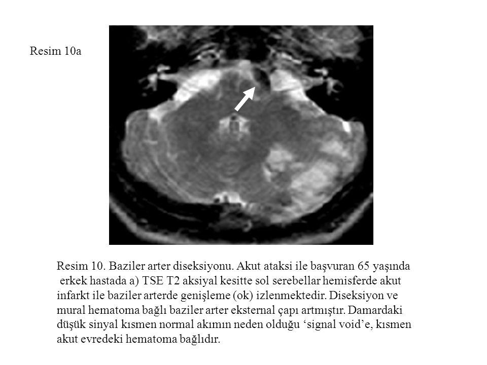 Resim 10a Resim 10. Baziler arter diseksiyonu. Akut ataksi ile başvuran 65 yaşında erkek hastada a) TSE T2 aksiyal kesitte sol serebellar hemisferde a