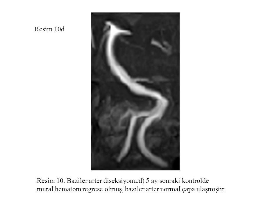 Resim 10d Resim 10. Baziler arter diseksiyonu.d) 5 ay sonraki kontrolde mural hematom regrese olmuş, baziler arter normal çapa ulaşmıştır.