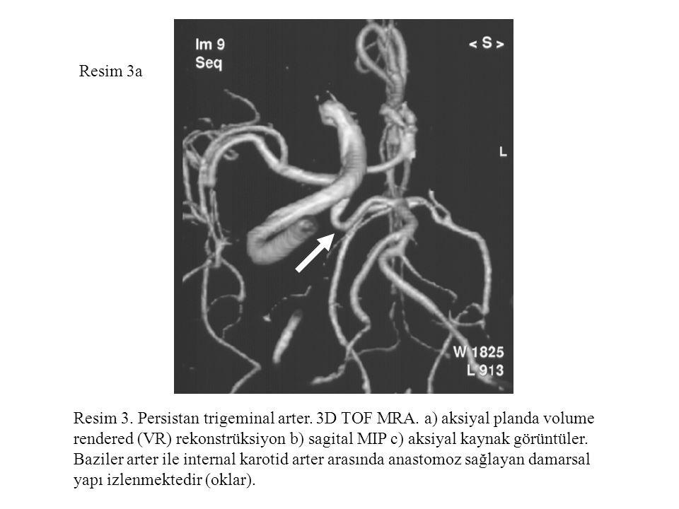 Resim 3a Resim 3. Persistan trigeminal arter. 3D TOF MRA. a) aksiyal planda volume rendered (VR) rekonstrüksiyon b) sagital MIP c) aksiyal kaynak görü