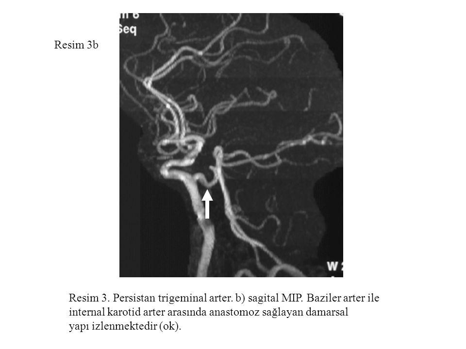 Resim 3b Resim 3. Persistan trigeminal arter. b) sagital MIP. Baziler arter ile internal karotid arter arasında anastomoz sağlayan damarsal yapı izlen