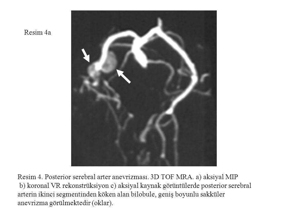 Resim 4a Resim 4. Posterior serebral arter anevrizması. 3D TOF MRA. a) aksiyal MIP b) koronal VR rekonstrüksiyon c) aksiyal kaynak görüntülerde poster