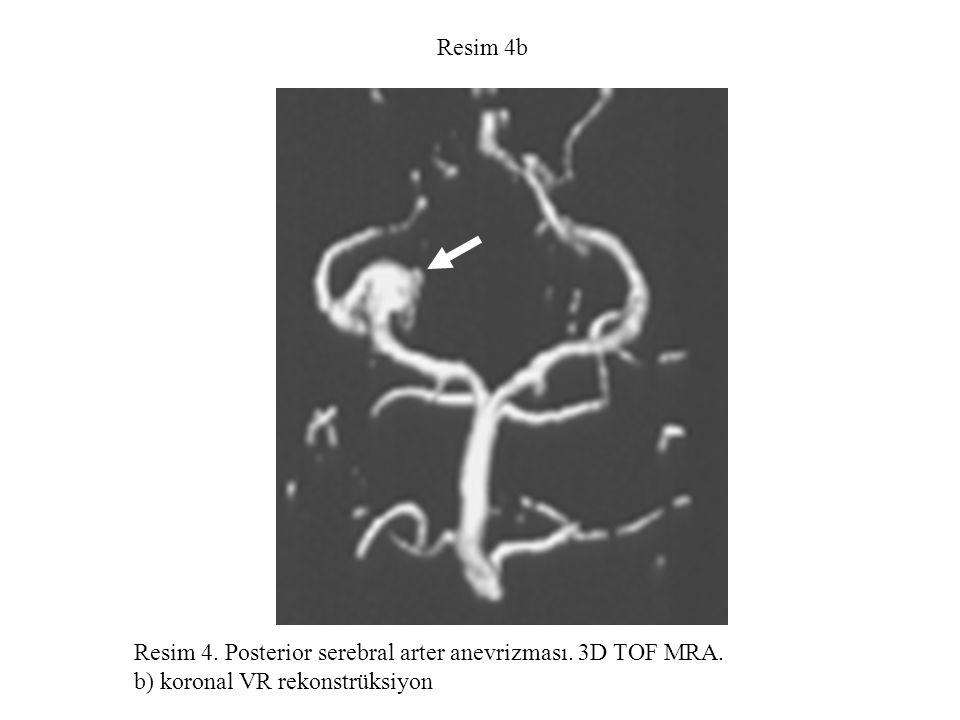 Resim 4c Resim 4. Posterior serebral arter anevrizması. 3D TOF MRA. c) aksiyal kaynak görüntü.