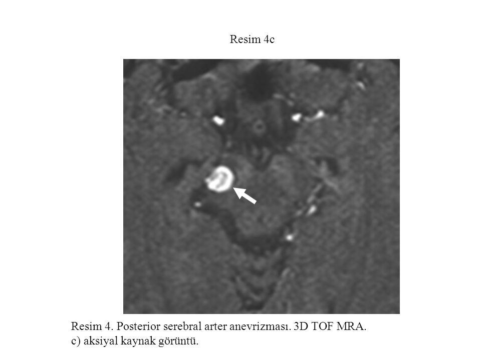 Resim 5a Resim 5.Baziler arterde dev fuziform anevrizma.