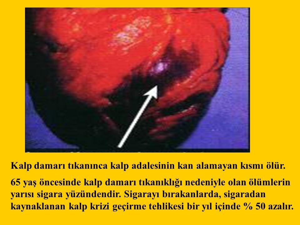 65 yaş öncesinde kalp damarı tıkanıklığı nedeniyle olan ölümlerin yarısı sigara yüzündendir. Sigarayı bırakanlarda, sigaradan kaynaklanan kalp krizi g