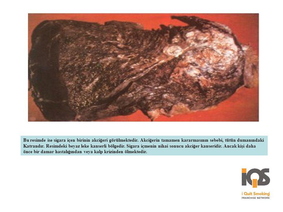 Bu resimde ise sigara içen birinin akciğeri görülmektedir. Akciğerin tamamen kararmasının sebebi, tütün dumanındaki Katrandır. Resimdeki beyaz leke ka