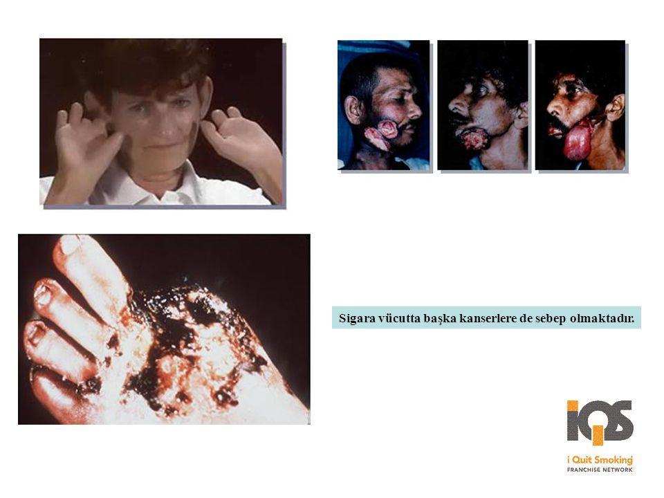 Sigara vücutta başka kanserlere de sebep olmaktadır.