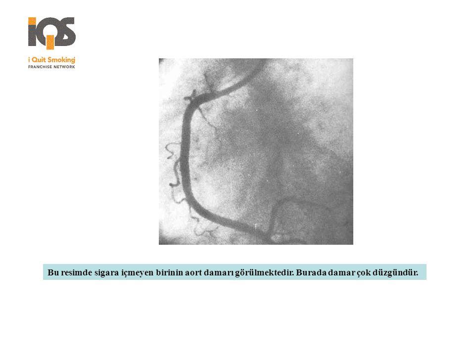 Bu resimde sigara içmeyen birinin aort damarı görülmektedir. Burada damar çok düzgündür.