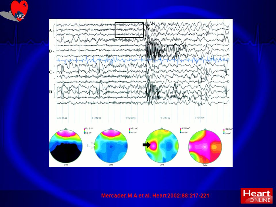 31 Heart 2002;88:217-221 CARDIOVASCULAR MEDICINE New insights into the mechanism of neurally mediated syncope M A Mercader1, P J Varghese1, S J Potolicchio2, G K Venkatraman2 and S W Lee1 Department of Neurology, The George Washington University Amaç: NMS'de serebral korteksin rolünü tayin temek Metod: Tilt testine giden hastalarda EEG değerlendirildi Sonuç: Senkoptan önce beynin sol hemmisferine EEG aktivitesinin lateralize olduğu saptandı.
