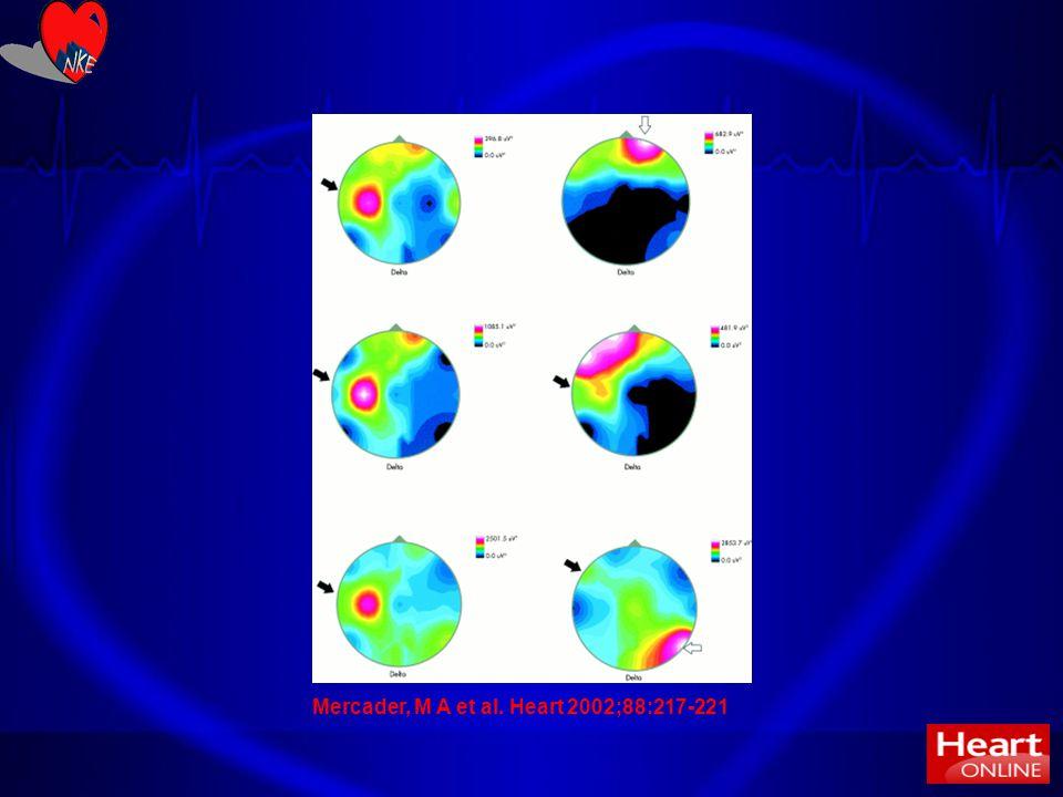 32 Mercader, M A et al. Heart 2002;88:217-221