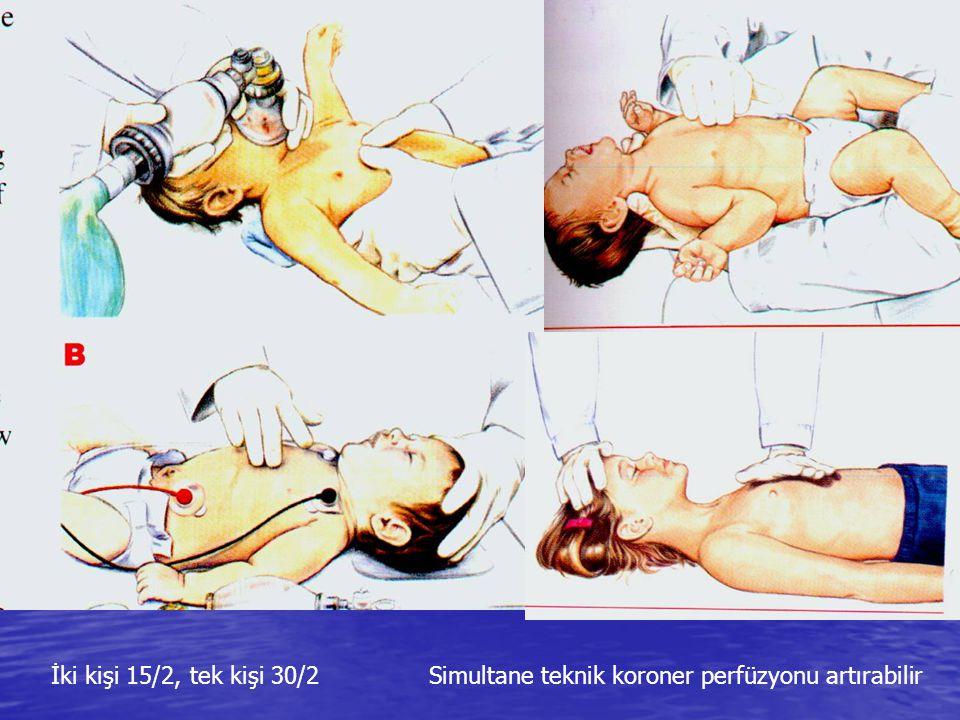 Çocuk ve İnfant CPR Göğüs AP çapı 1/3' ü derinlik Göğüs AP çapı 1/3' ü derinlik 30:2 kompresyon:ventilasyon (tek kurtarıcı) 30:2 kompresyon:ventilasyo