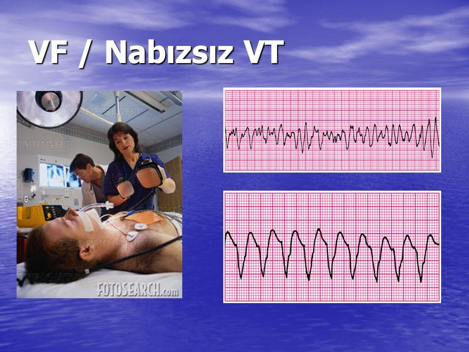 Acil Servis içi Hareket Planı Kardiyak Arrest Algoritması 1. Nabız' a Bak 2. Yardım İste ve TYD' ye Başla 3. Oksijen Başla 4. Monitorize Et (DEFİBRİLA