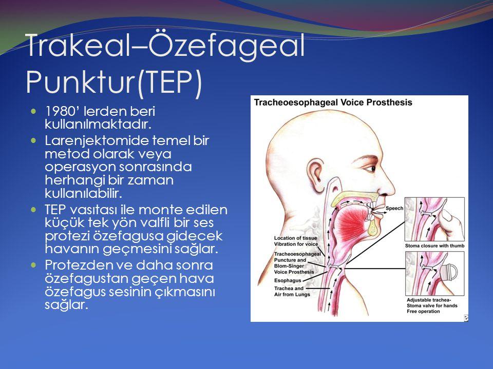 Trakeal–Özefageal Punktur(TEP) 1980' lerden beri kullanılmaktadır. Larenjektomide temel bir metod olarak veya operasyon sonrasında herhangi bir zaman