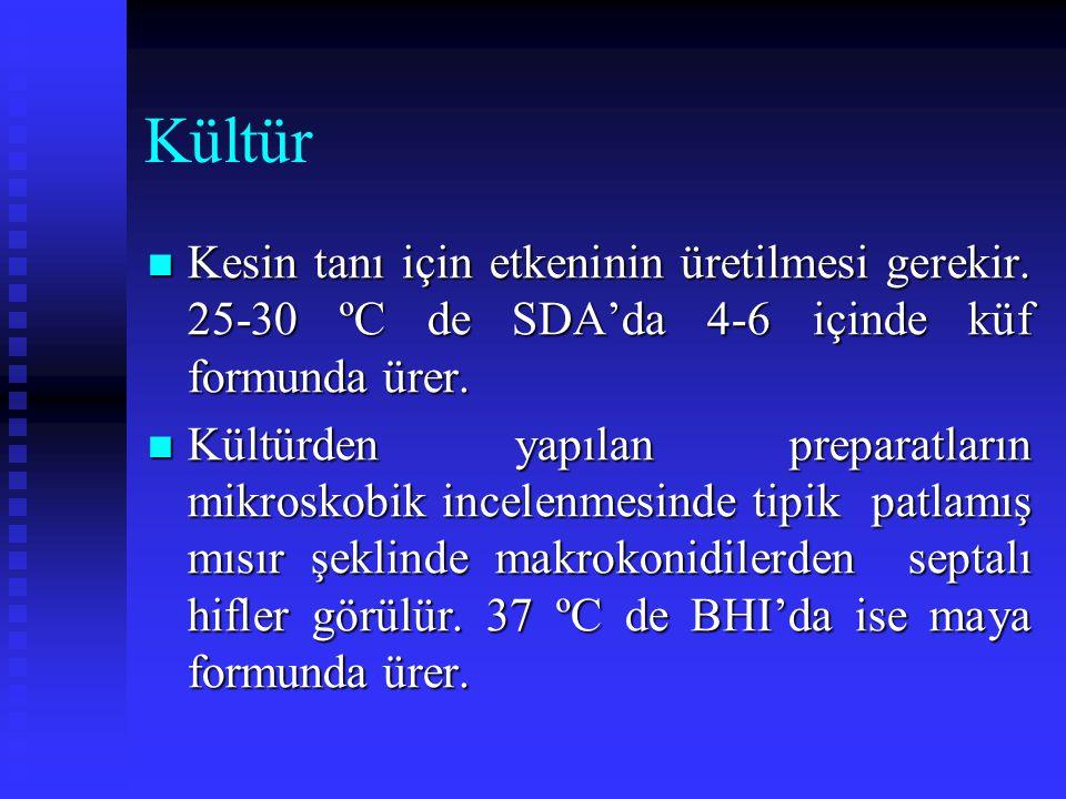 Kültür Kesin tanı için etkeninin üretilmesi gerekir. 25-30 ºC de SDA'da 4-6 içinde küf formunda ürer. Kesin tanı için etkeninin üretilmesi gerekir. 25