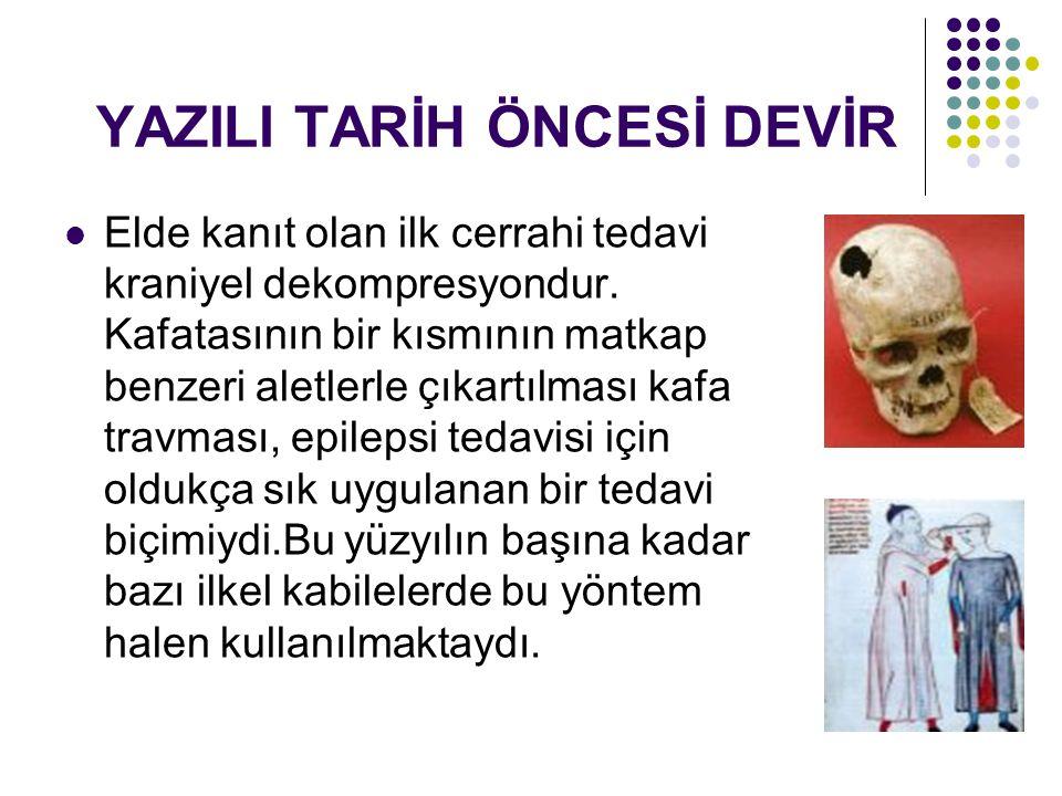 YAZILI TARİH ÖNCESİ DEVİR Elde kanıt olan ilk cerrahi tedavi kraniyel dekompresyondur.
