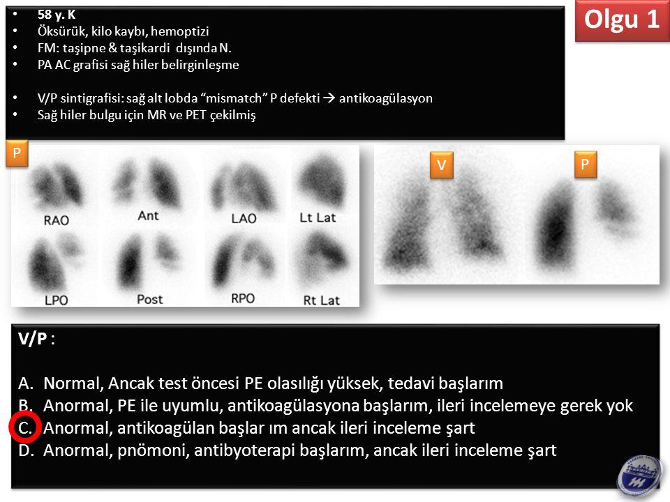 MR & FDG PET: A.PE ile uyumlu, yeni birşey katmadı B.Akciğerde enfeksiyon/malignite ayrımı yapılamayan fokal hipermetabolizma C.İntravasküler fokal hipermetabolizma MR & FDG PET: A.PE ile uyumlu, yeni birşey katmadı B.Akciğerde enfeksiyon/malignite ayrımı yapılamayan fokal hipermetabolizma C.İntravasküler fokal hipermetabolizma Olgu 1
